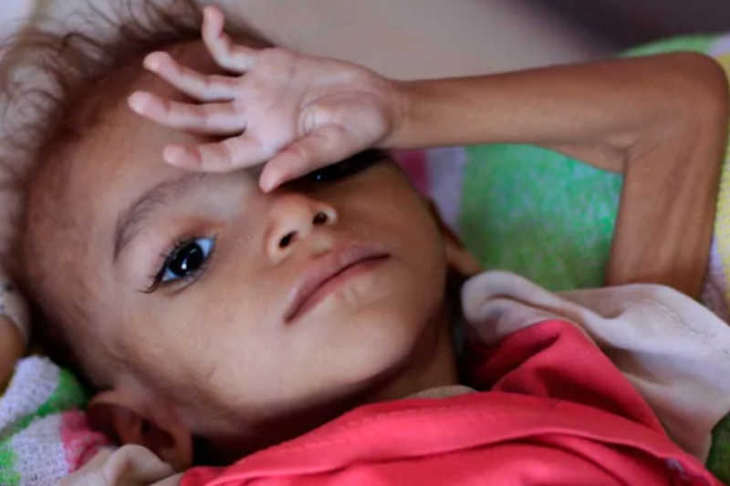 As a result of the violence, disease, and food insecurity, a Yemeni child dies every 11 minutes and 54 seconds.
